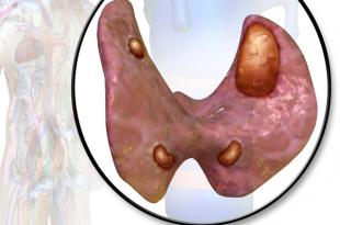 adenoma-parashitovidnoj-zhelezy