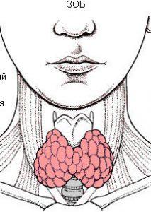 Процедура показана больным с большими образованиями.