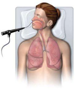 Бронхоскопия может назначатся для диагностики болезни.