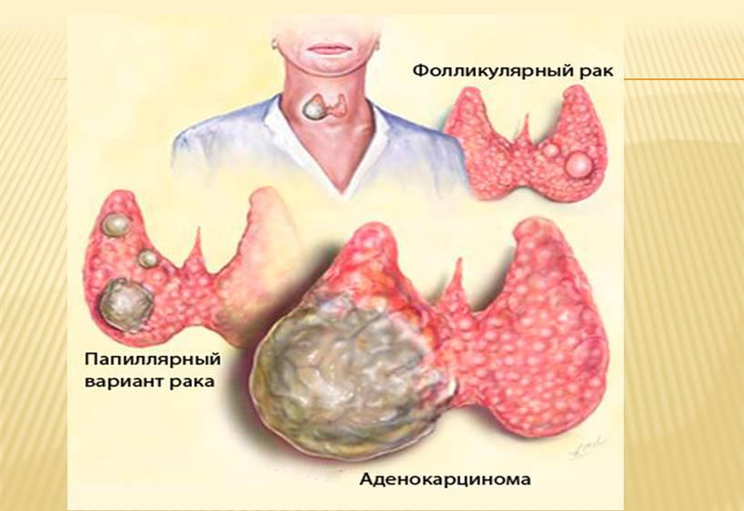 Фолликулярный рак щитовидной железы