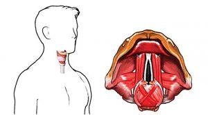 Изменение тембра голоса возможно в следствии операции из-за близости голосовых связок к щитовидке.
