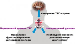 Гипертиреоз можно обнаружить, сдав анализ крови на концентрацию гормонов.