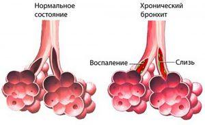 У детей возможно осложнение болезни в виде бронхита.