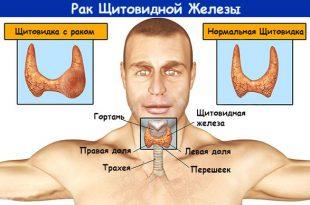 medullyarnyj-rak-shitovidnoj-zhelezy