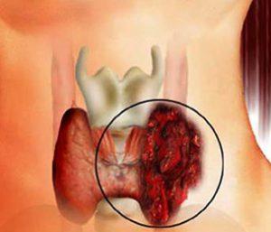 Боли на шее в местах уплотнения - это самый частый симптом.