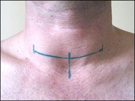 Действенный метод для устранения опухоли - хирургическое вмешательство.