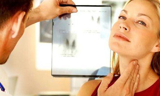 Чаще из-за кисты щитовидки страдают женщины.