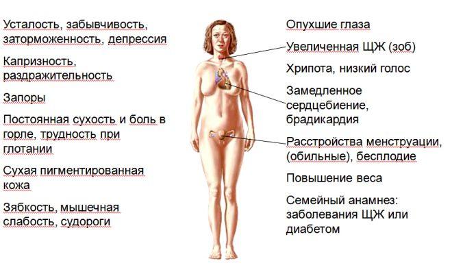 Симптомы гипертериоза
