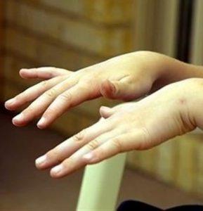 Тремор рук и языка характерен для болезни.