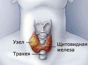 Больному с увеличенным коллоидным узлом тяжело дышать и сложно употреблять пищу.