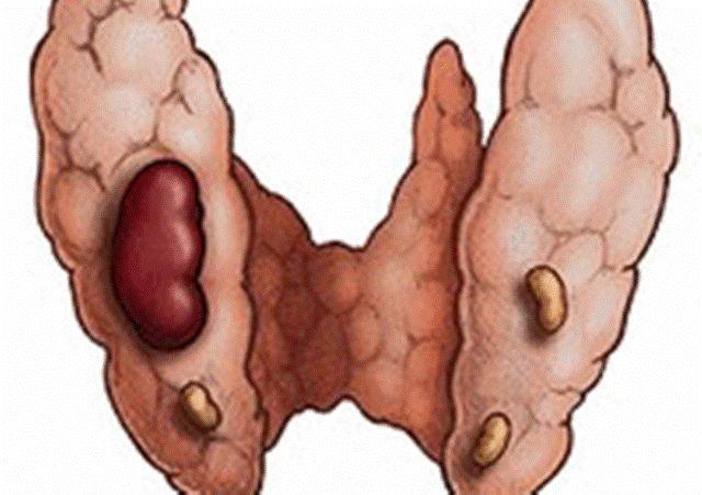 Аденома щитовидки