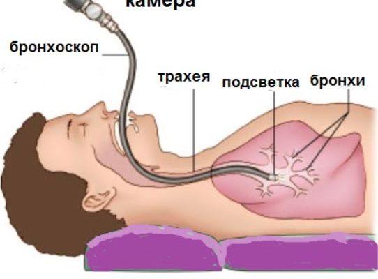 Для постановки диагноза могут назначить бронхоскопию.
