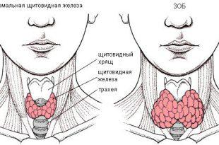 eutireoidnyj-zob