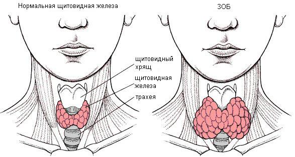 Эутиреоидный зоб