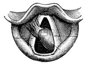 Фиброма гортани - доброкачественная опухоль.