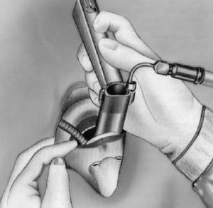 Микроларингоскопия позволяет диагностировать заболевание.