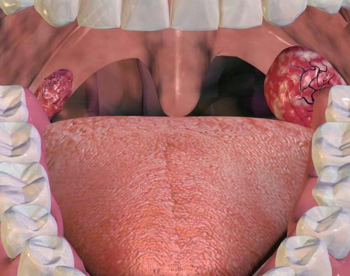 Ангина симптомы и лечение фото признаки ангины у взрослых