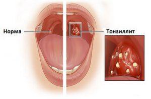 Качественные процедуры помогут избавить больного от инфекции.