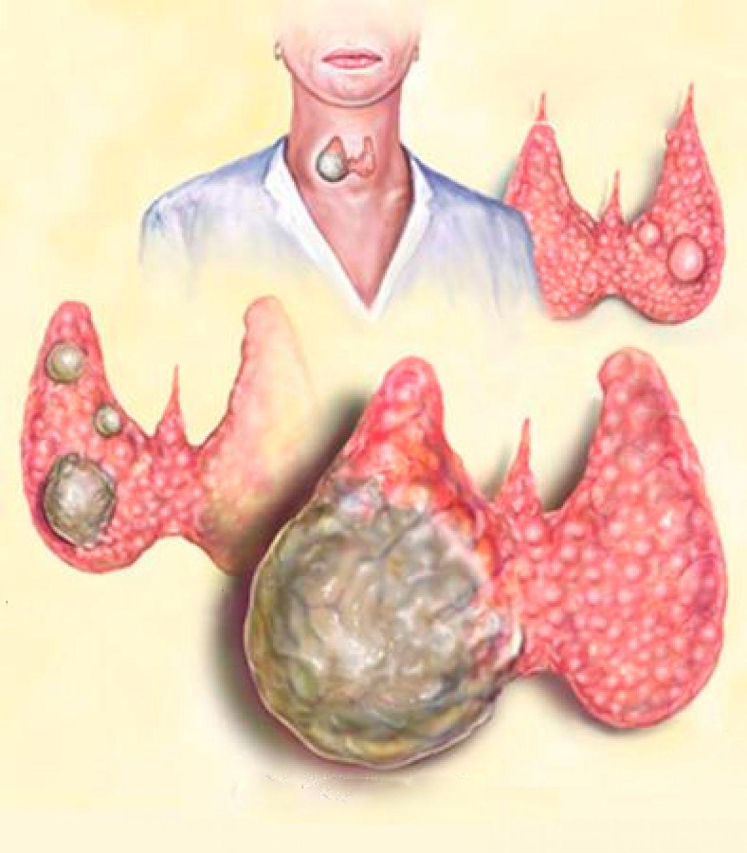 Боль в левом боку под ребрами диарея