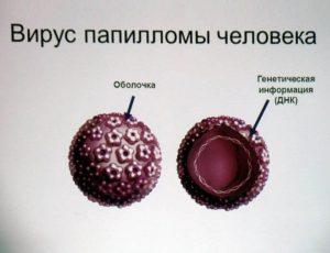 ВПЧ может передаться от матери к ребенку при прохождении родовых путей.
