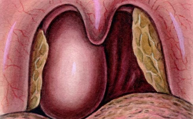 Рак носоглотки