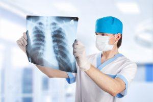 Врач может назначить рентген грудной клетки для диагностики заболевания.