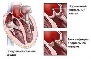 После ангины на сердце возникает осложнения - ревматизм сердца.