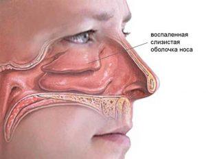 Обычно организм справляется с болезнью за 7-10 дней.