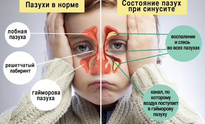 При синусите может быть назначена эндоскопия.