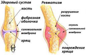 Ревматизм суставов - после осложнений ангины.