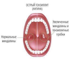 Симптомы острого тонзиллита.