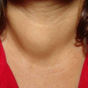 Узел большого размера может изменить форму шеи.