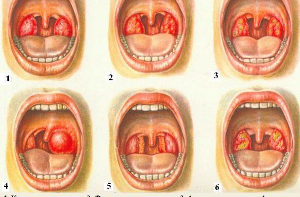 Для правильного назначения антибиотика в первую очередь определяется вид ангины.