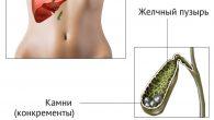zhelchnokamennaya-bolezn