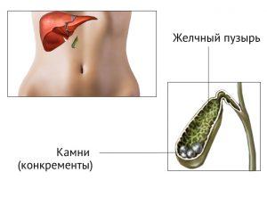 При желчнокаменной болезни следует соблюдать диету.