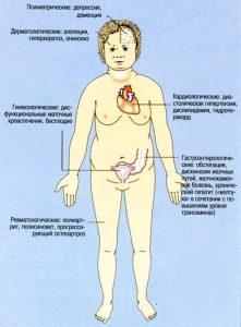 Зоб гипотиреоз развивается из-за недостатка йода.