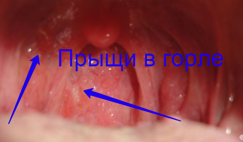 красные сосуды в горле фото