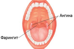 otlichie-faringita-ot-anginy
