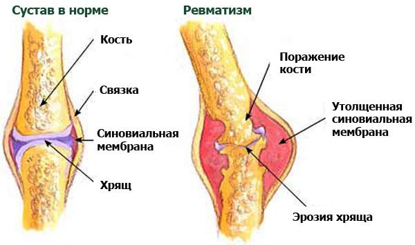 Ревматизм - одно из возможных осложнений после ангины.