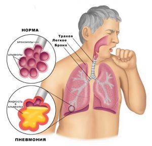 Воспаление легких может развиться при осложнении болезни.