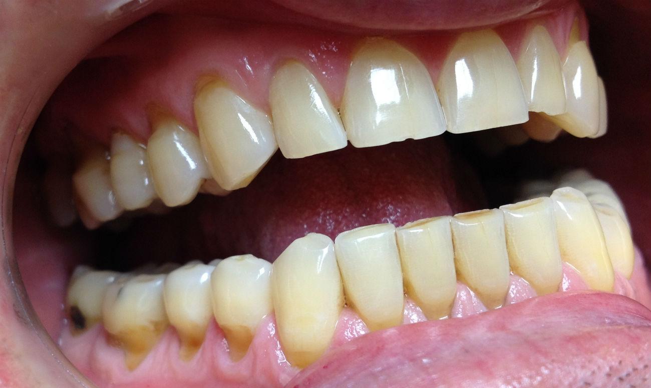 Болезни зубов повышают риск заболеть ангиной.