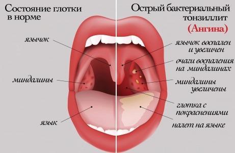 Лечение плоской лейкоплакии