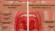 anginna