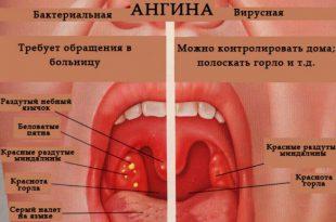 С чем связаны болезни горла