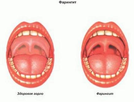 Стоимость лечения зубов в украине