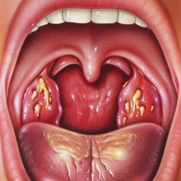 Стрептококковая инфекция горла - симптомы и лечение 27