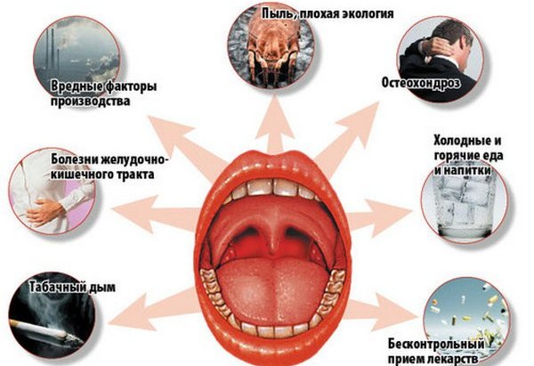 хронический тонзиллит хронический запах изо рта