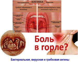 Виды инфекции гола