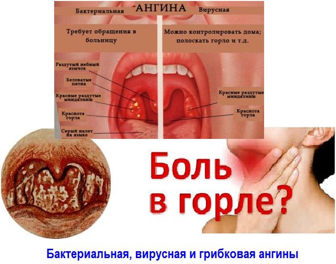 Какие могут быть инфекции