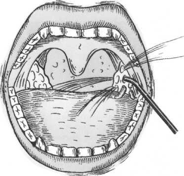 после удаления миндалин запах изо рта остался